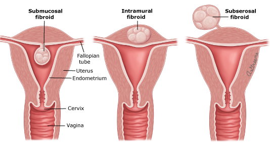 image-for-fibroid-article